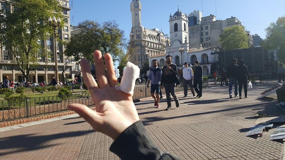 diabetes argentina