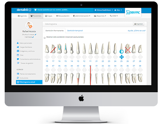 Software Odontograma Dental