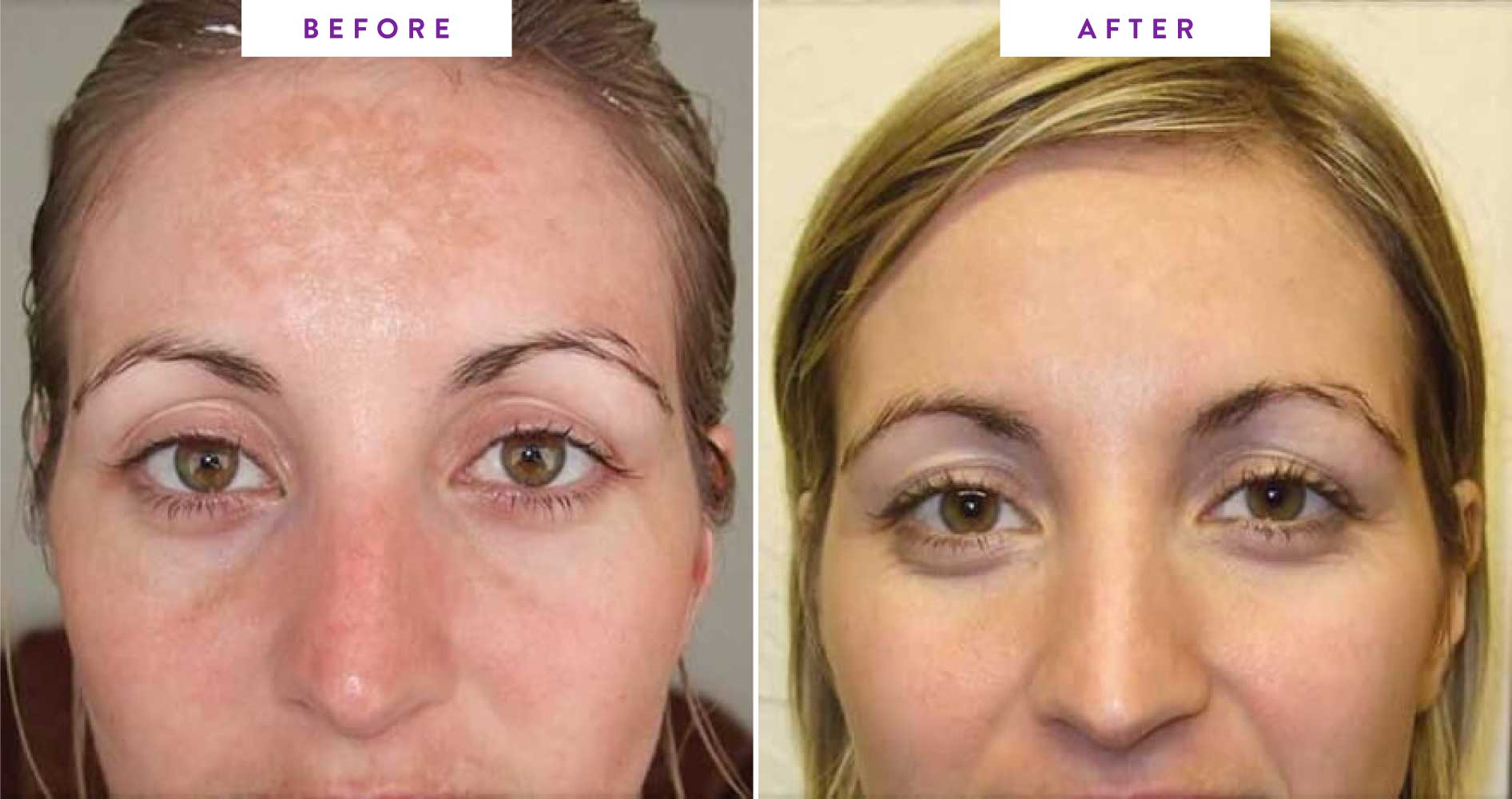 before and after microdermabrasion image