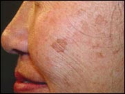 skin spots