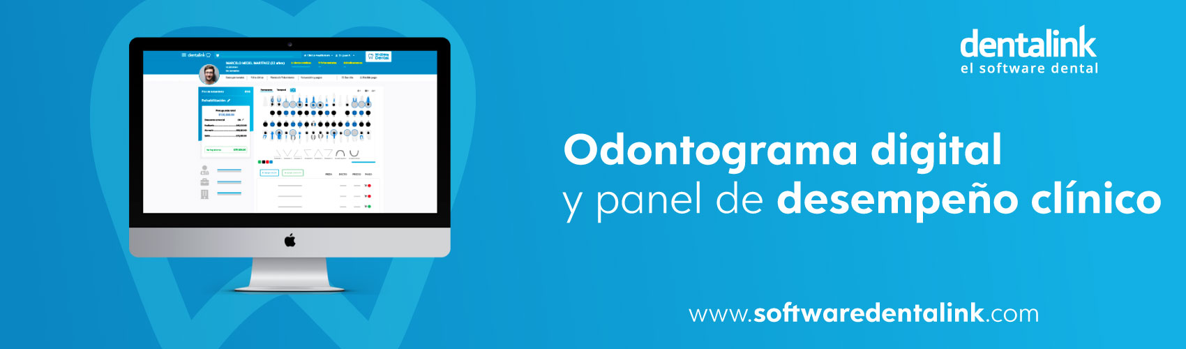 ▷ Odontograma Digital de Dentalink