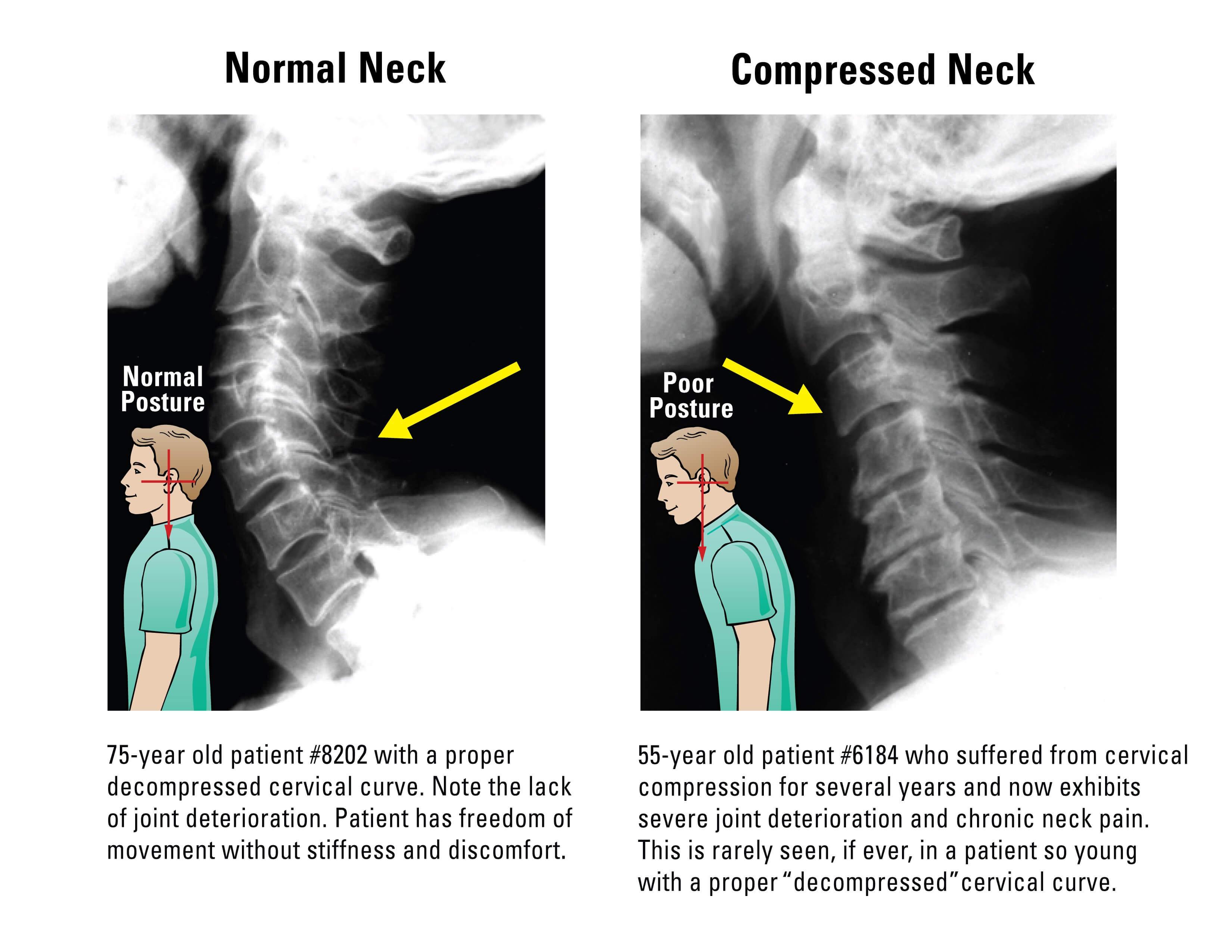Compressed Spine