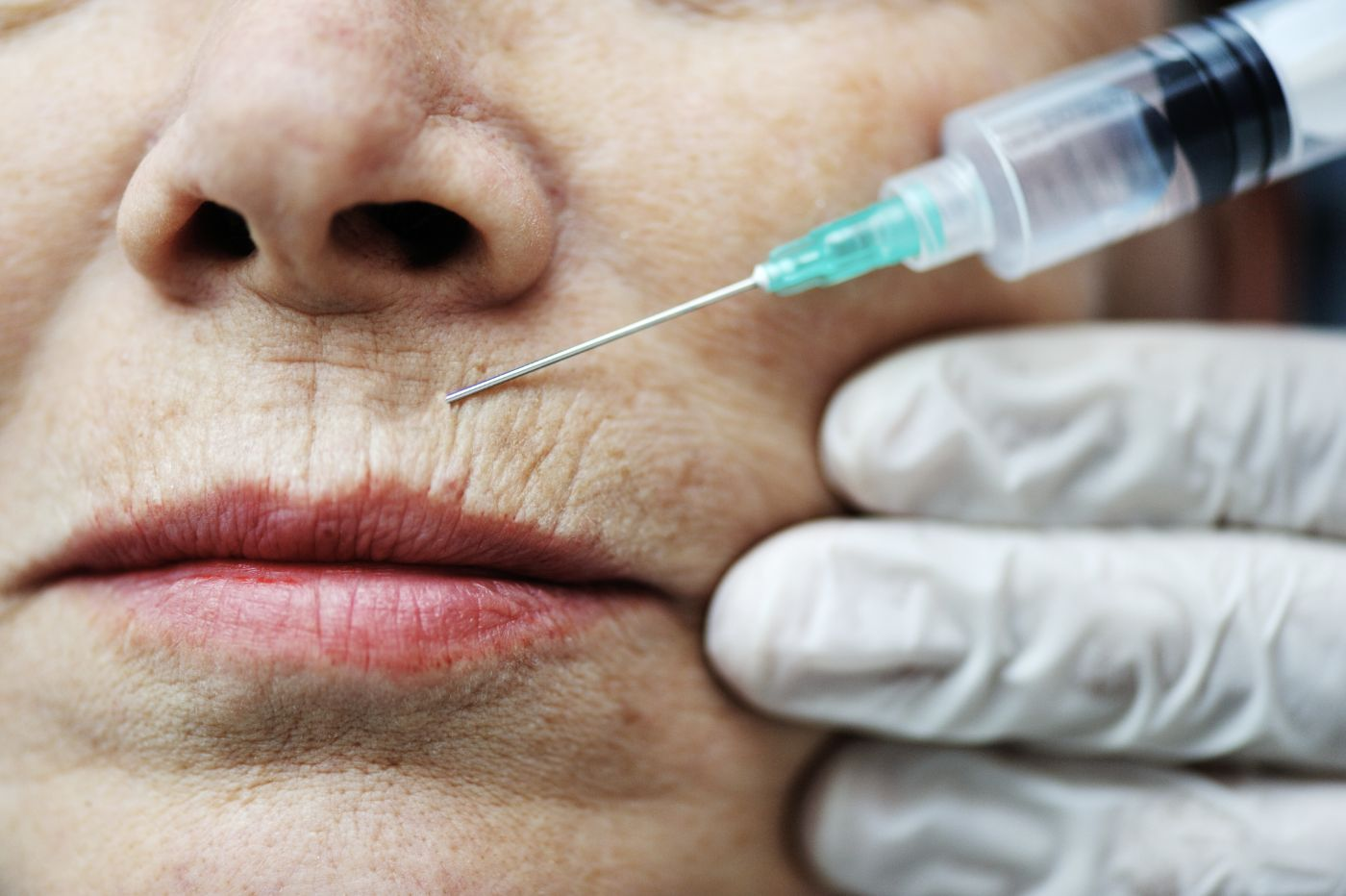 woman lips botox lifting