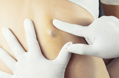 Lumps, Bumps and Cysts