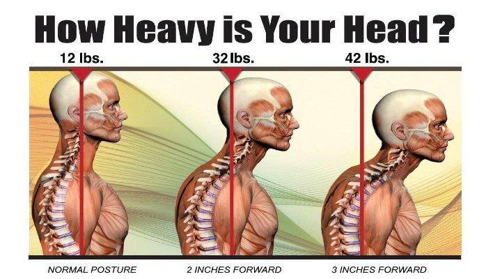 Forward Head Posture (FHP)