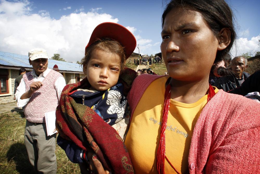 foto van een vrouw die een kind draagt met een blind oog