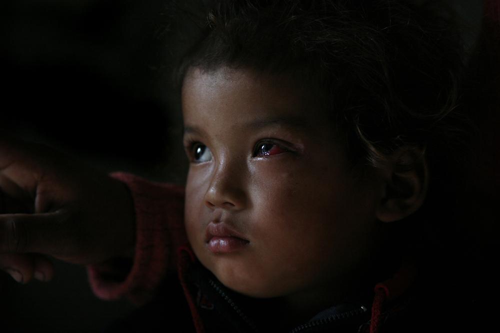 foto van een kind met een beschadigd oog