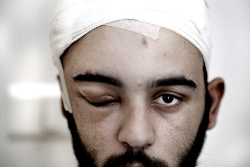 foto van Marielle van Uitert van man met hoofdwond in ziekenhuis