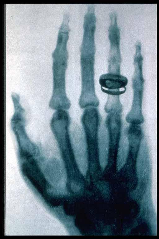 De eerste röntgenfoto