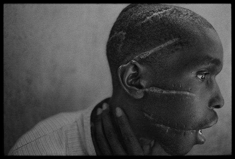 foto: James Nachtwey | Hutu man, Rwanda 2004