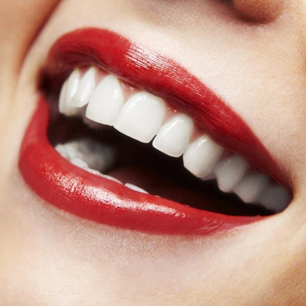 In nur wenigen Minuten zu einem strahlenden Lächeln mit einer professionellen kosmetischen Zahnaufhellung. Bleaching der Zähne auf natürlicher Basis – Ohne Peroxide und ohne Schadstoffe.