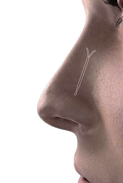 Latera Absorbable Nasal Implant