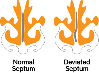 Normal Septum vs Deviated Septum