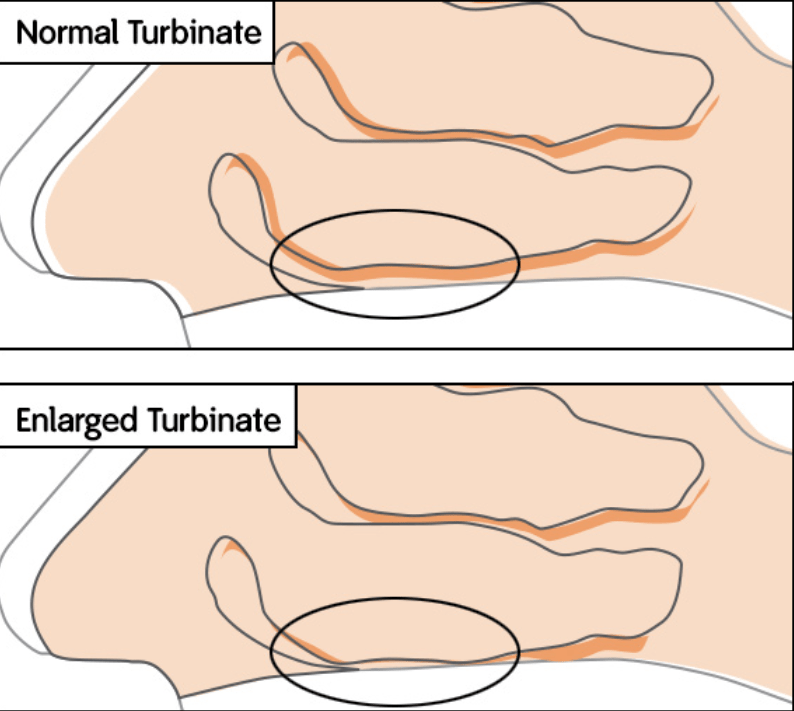 Normal vs Enlarged Turbinate