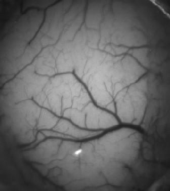 R&D Vision - NeuroPSI dispositif imagerie haute fréquence et haute sensibilité