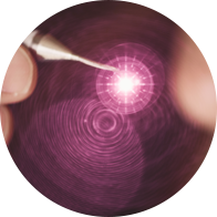 Photo of a dental laser wand