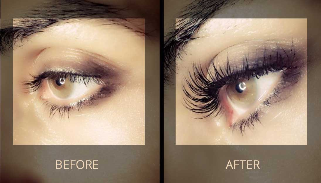 Eyelash Eyebrow Rehabilitation