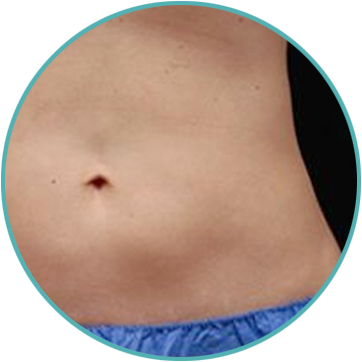 coolsculpting fat freezing treatment results on your stomach
