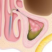 Sinuplasty Procedure Step 1