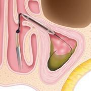 Sinuplasty Procedure Step 2