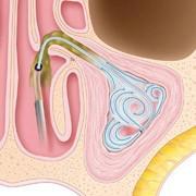 Sinuplasty Procedure Step 3