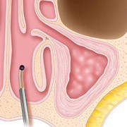 Sinuplasty Procedure Step 4