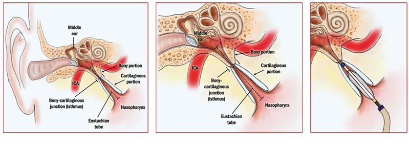ETD Treatment Procedure
