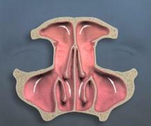 Endoscopic Sinus Surgery - Sinus Drainage