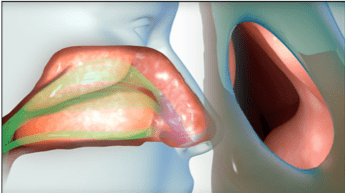 Safe, Effective, Treatment for Nasal Obstruction