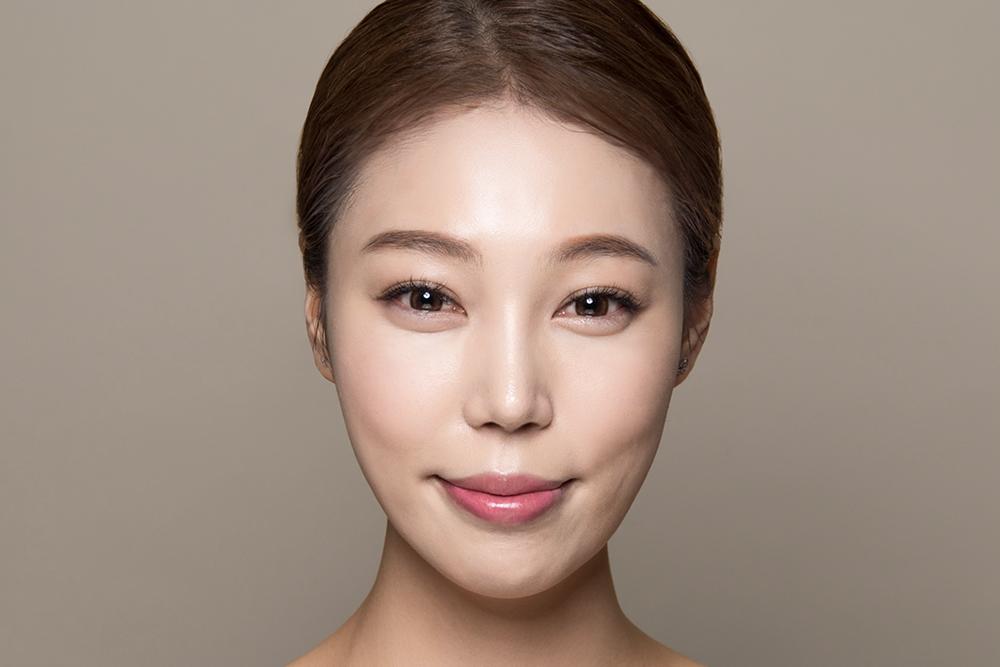 HIKO Nose Thread Lift | Amaris B  Clinic by Dr  Ivan Puah