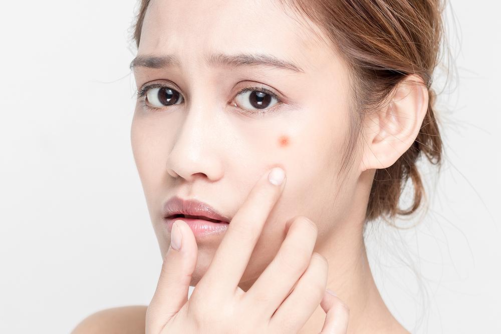 Cafe Au Lait Birthmark Amaris B Clinic By Dr Ivan Puah