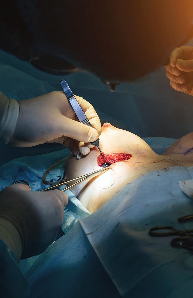 Image of a breast implantation procedure for educational purpose