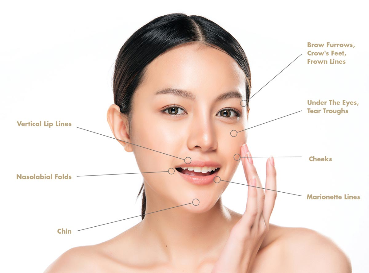 Facial Fat Grafting - Face mapping