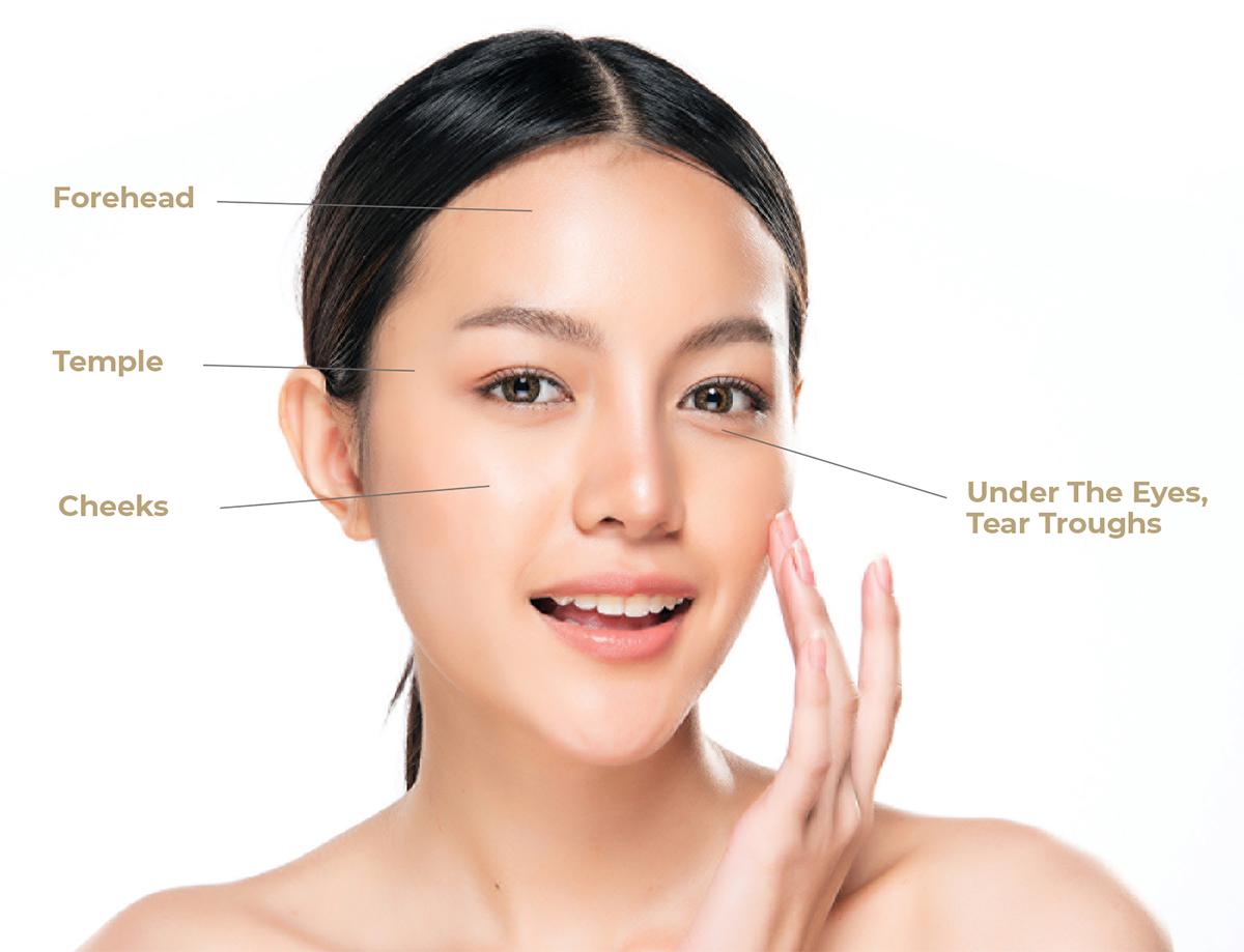 Facial Fat Grafting Face zones