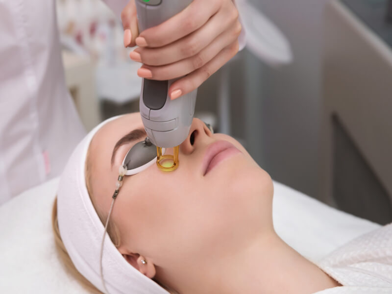 hyperpigmentation treatment picocare fractional laser amaris b clinic
