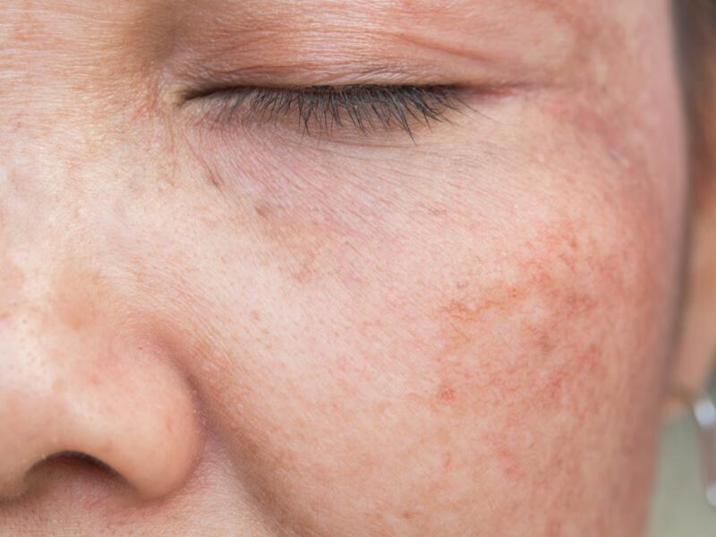 hyperpigmentation treatment picocare fractional laser amaris b clinic