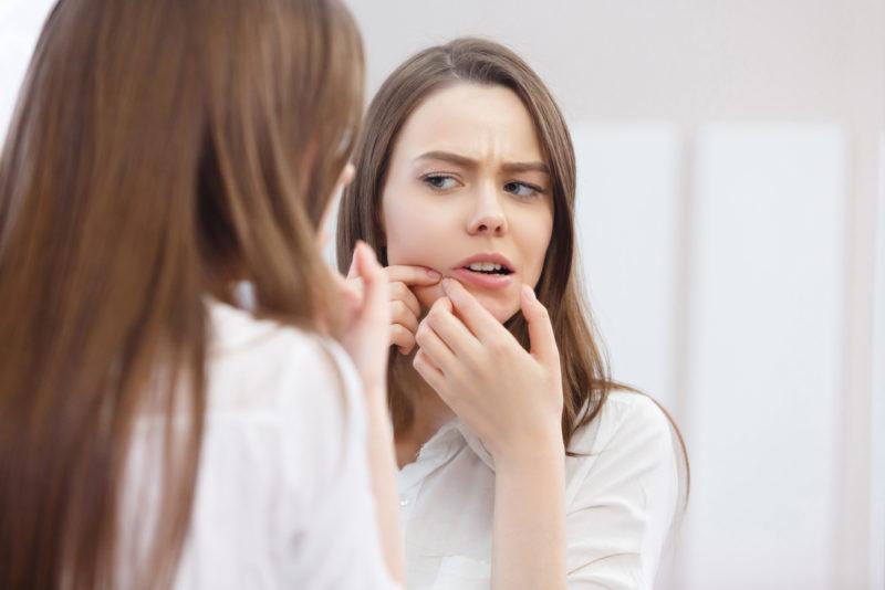 acne scars skin laser facial amaris b clinic
