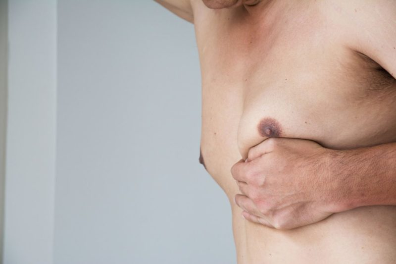 gynecomastia surgery amaris b clinic get rid of man boobs