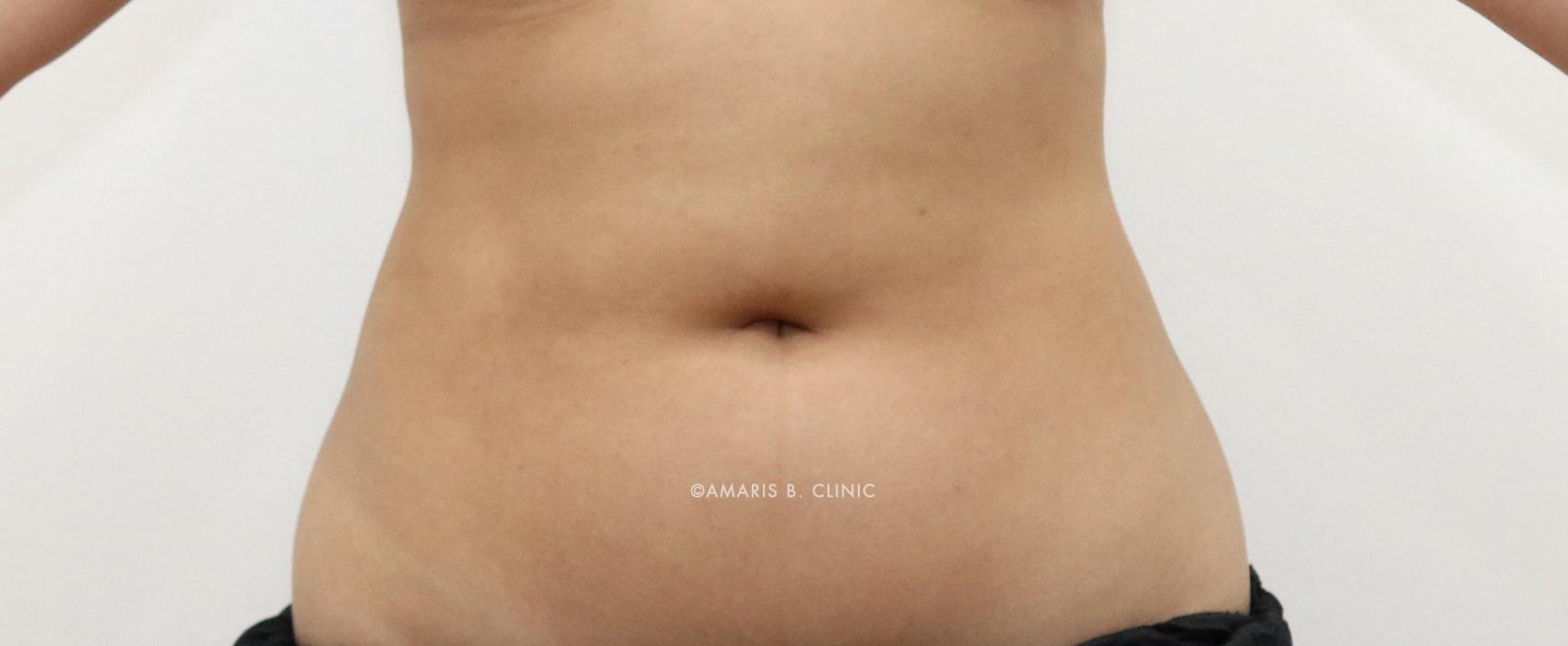 Aesthetic & Cosmetic Procedure Myths