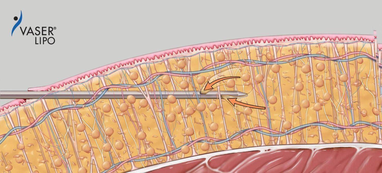 VASER Liposuction Singapore Amaris B Clinic Process Aspiration