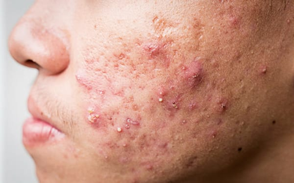 Acne and post-acne skin woes