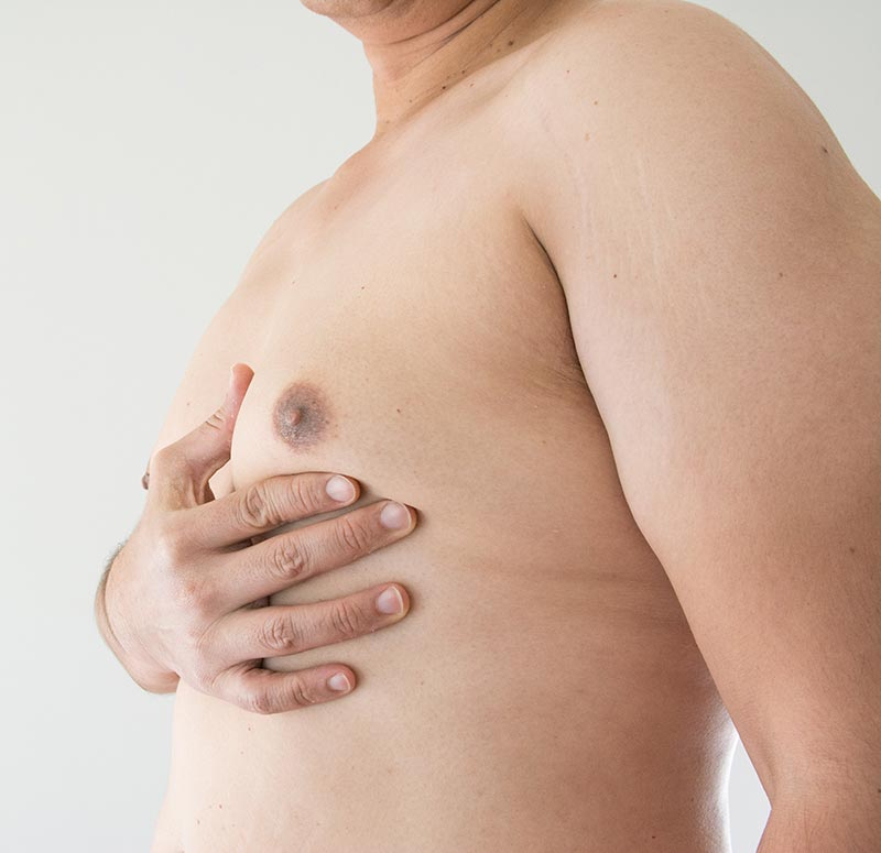 Man with either gynecomastia or pseudogynecomastia  | Dr Ivan Puah, Gynecomastia Surgery Doctor in Singapore, Amaris B. Clinic