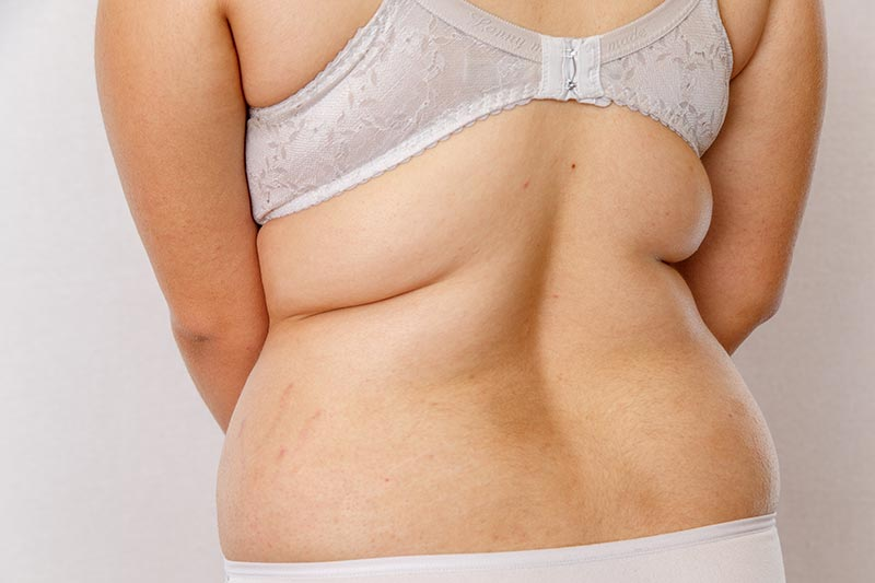 We've got your Back   Amaris B Clinic Liposuction Back Fat