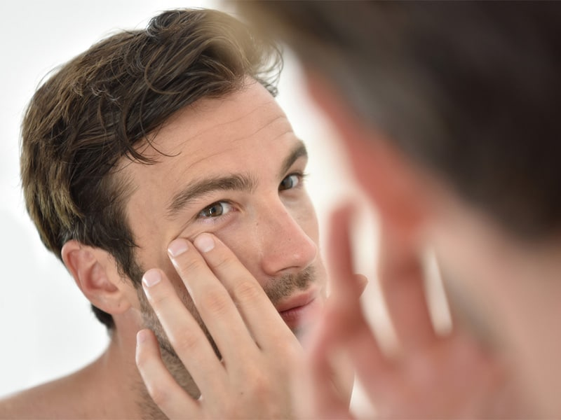 ultherapy facelift for men