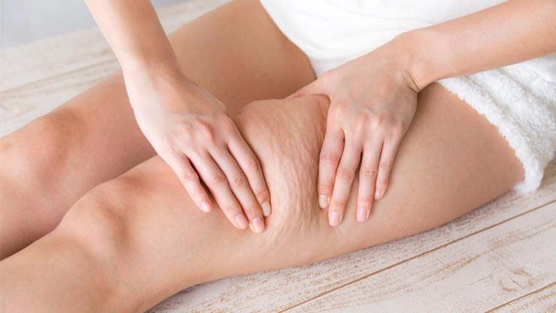6 little-known facts about cellulite
