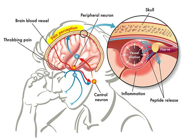 migraine-headache-mechanism