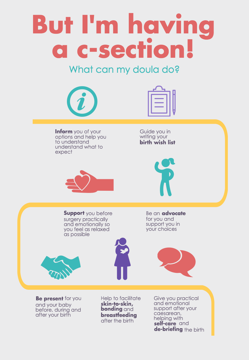 How can a doula support you if you are having a c-section caesarean birth