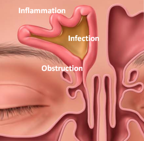 Sinus Infection, Inflammation