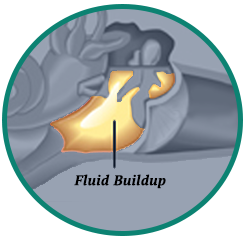 Fluid Buildup