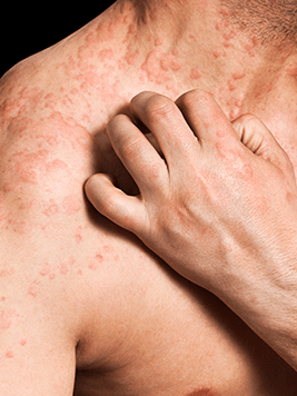 Hives and itching from allergies